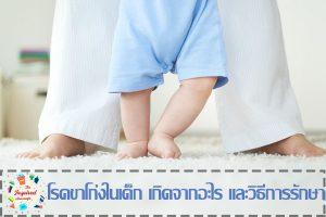 โรคขาโก่งในเด็ก เกิดจากอะไร และวิธีการรักษา #ครอบครัว