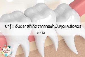 น่ารู้!! อันตรายที่เกิดจากการผ่าฟันคุดและข้อควรระวัง
