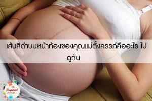 เส้นสีดำบนหน้าท้องของคุณแม่ตั้งครรภ์คืออะไร ไปดูกัน