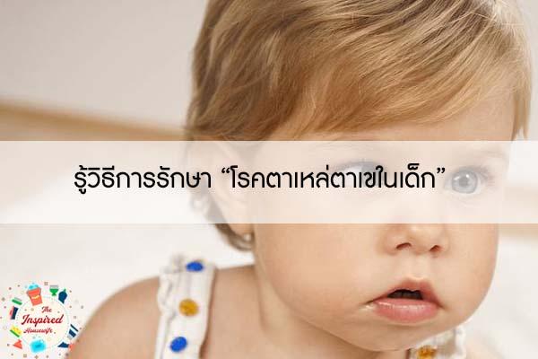 """รู้วิธีการรักษา """"โรคตาเหล่ตาเขในเด็ก"""""""